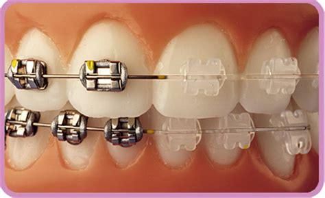 imagenes odontologicas gratis tipos e cores de aparelho ortod 244 ntico dentalprev