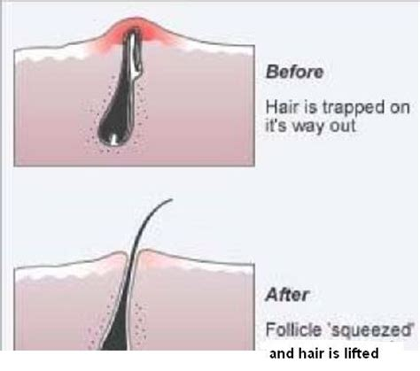 how to wash bump hair folliculitis causes symptoms and treatment