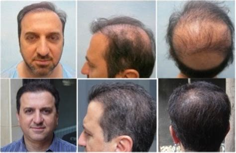 hair plugs vs transplant body hair transplant videos for patient education