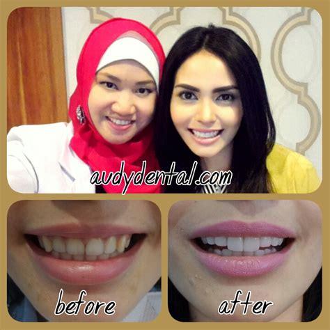 Biaya Pemutihan Gigi Di Jakarta diskon veneer gigi dan pemutihan gigi di audy dental jakarta dan depok audy dental