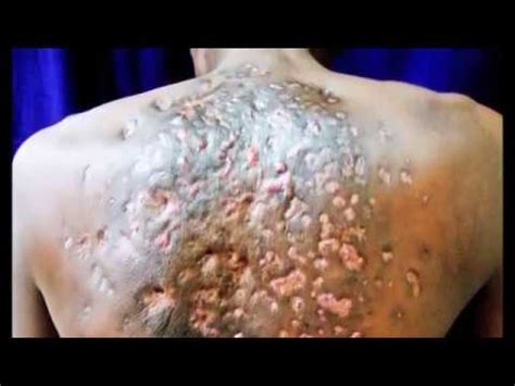 bot fly removal botfly removal from kittens funnycat tv