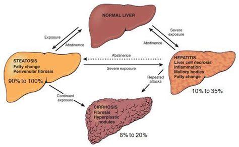 liver disease diet liver disease jpg