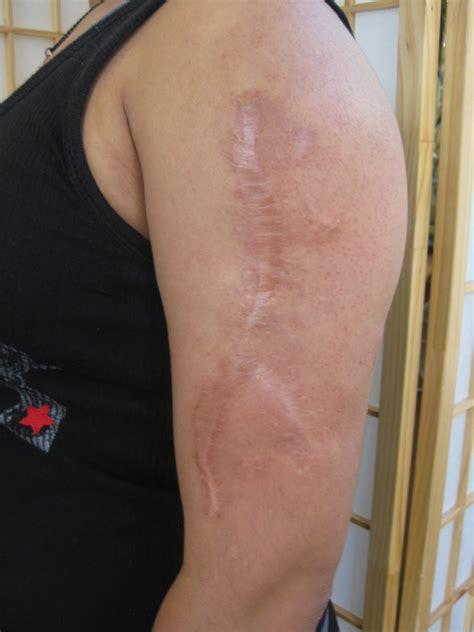 tattoo on arm scar arm scar before by madamelazonga on deviantart
