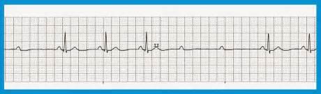 Second degree av block type 1 vs type 2 second degree heart block type