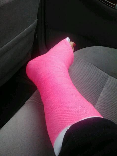 broken leg my cast the bright pink is pretty my broken leg leg cast