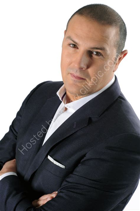 paddy mcguinness hair implants paddy mcguinness hair transplant has paddy mcguinness