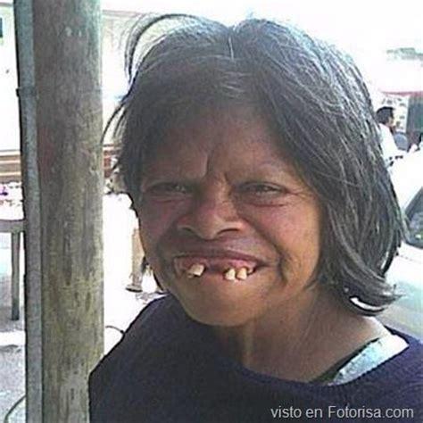 Imagenes Graciosas Feas | las sonrisas mas feas del mundo jajajajajajajajjaa