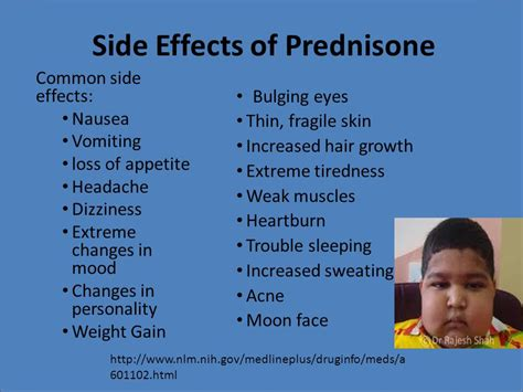 weight management while on prednisone the thing about prednisolone about your health