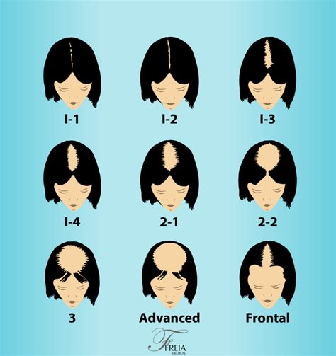 ludwig scale female androgenetic alopecia savin scale for female hair loss male models picture