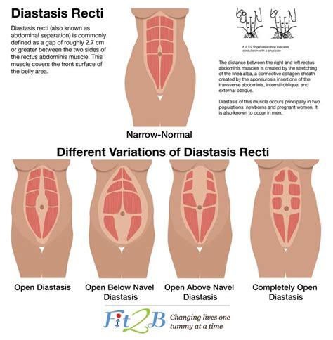 identify  fix diastasis recti motherhood