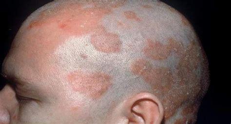 natural treatment for seborrheic dermatitis cradle cap risk of developing seborrheic eczema best online md