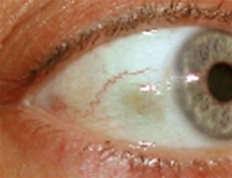 white spot on eye white bump on eyeball clear raised growth pictures bump on white of eye