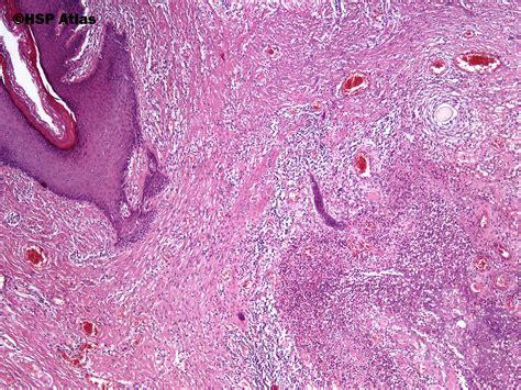 pilonidal cyst histology hsp atlas histopathology atlas skin