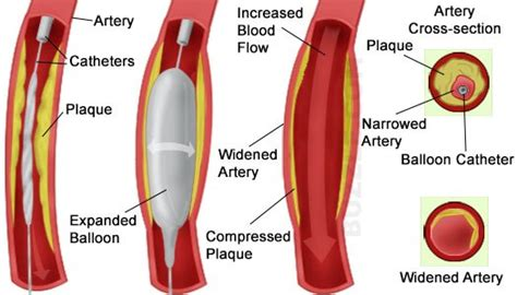 blocked arteries and open surgery blocked arteries symptoms and treatment