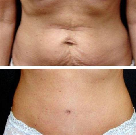 lipo after c section tummy tuck and lipo before and after pregnancy 187 tummy