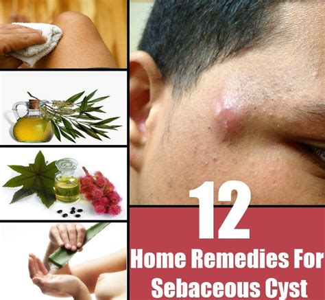 12 simple home remedies for sebaceous cyst diy home