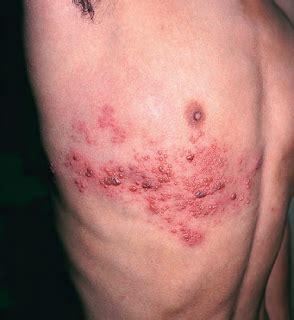 Obat Herpes obat penyakit herpes labialis