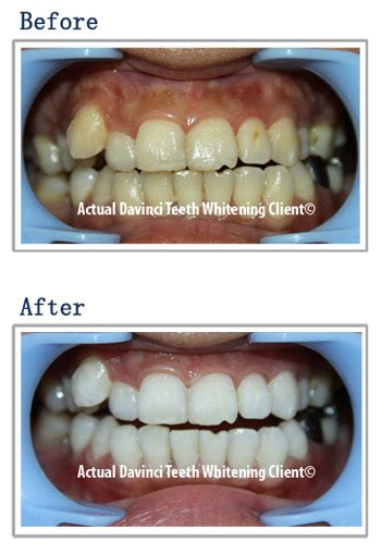 gallery davinci teeth whitening systems