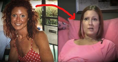 skin cancer from tanning beds skin cancer patient ashley trenner warns of the danger of