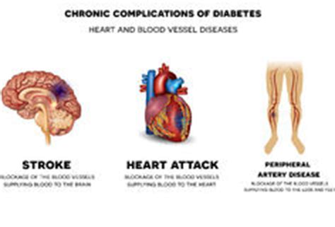 malattie cuore e dei vasi cuore e malattie dei vasi sanguigni immagini stock libere