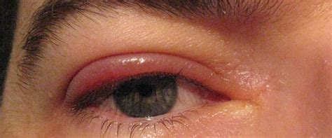 eyelid swollen what causes swollen eyelids eye disorders and diseases answers