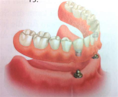 dentiera mobile costo offerta protesi su impianti phillippe d andrea