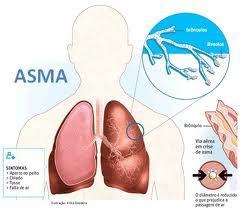 Asma Asma Asma Asma Obat Asma Penyakit Asma Ace Maxs cara mengobati asma