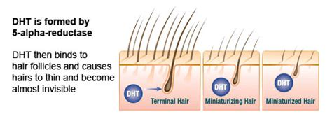 dht and 5ar hair loss in women pattern baldness and coping with it all about hair