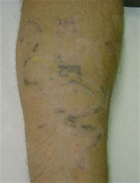 tattoo removal omaha 100 omaha cosmetic surgery tattoo removal eclipse