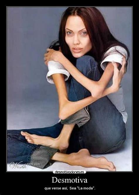 imagenes impactantes de anorexia 10 casos impactantes de anorexia male models picture
