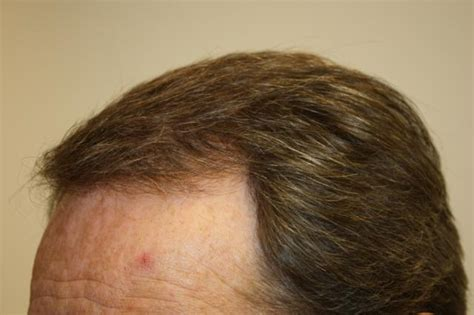 Hair Shedding After Hair Transplant by Hair Loss Hair Transplant And Hair Restoration Advice