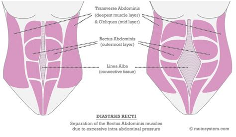 diastasis recti repair during c section exercise after a c section doing it right