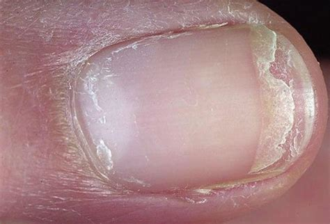 Nail Problems by What Causes Fingernail Problems What Causes This