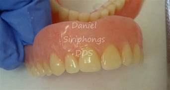 Dentures Tx Dentures And Implants Can Look Like Real Teeth In Sulphur