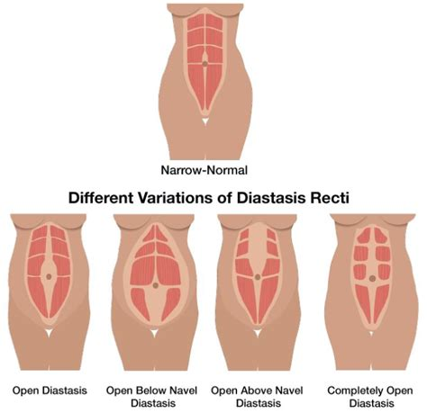 63 best images about diastasis recti mummy tummy on diastasis recti diastasis