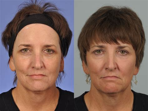 59 year old full face dual erbium laser in oreye lift w cosmetic surgery 174 laser skin resurfacing before after