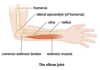 your wrists to your arms and now to your hair scuncis hair elbow tendonitis tennis golfer s elbow boot c