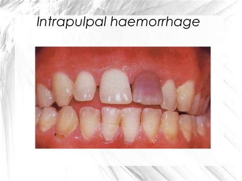 Intrapulpal definition of marriage