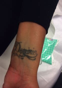 tattoo removal london cheap picoway removal removal