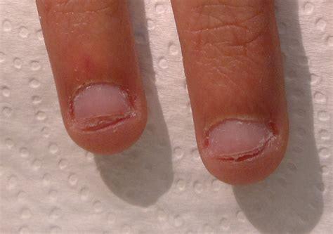 fotos de uñas acrilicas feas m 244 nica spice nail design