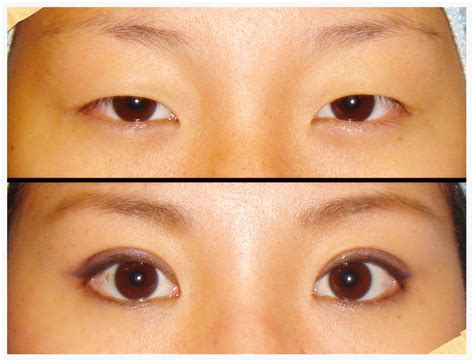 double eyelid japanese double eyelid surgery