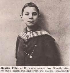 Meet maurice tillet the man rumored to have inspired shrek