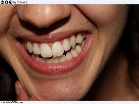 pulizia denti a casa pulizia dei denti