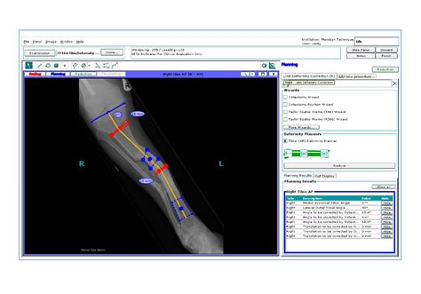 orthoview to showcase cutting edge software at rsna 2007