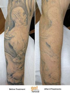 quarter sleeve tattoo removal 1000 images about tattoo removal in progress on pinterest