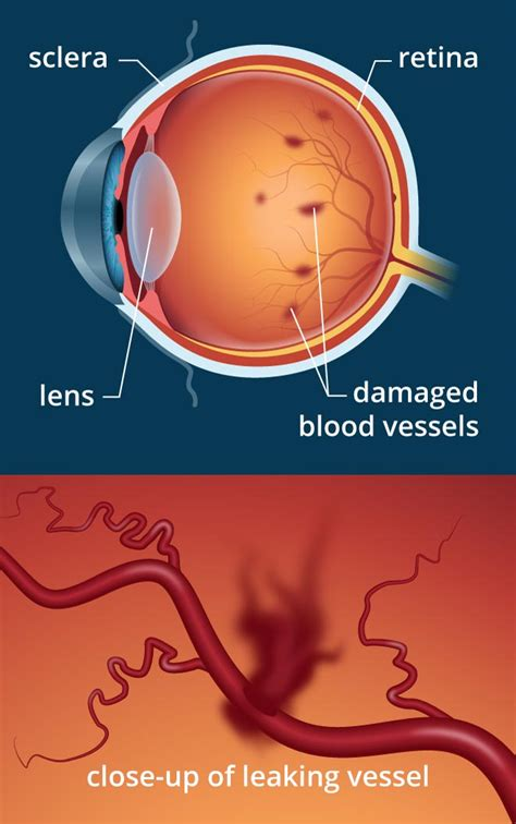 diabetic retinopathy  diabetes related eye problems