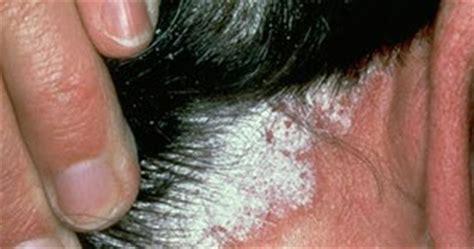 remedios naturales para psoriasis cuero cabelludo psoriasis cuero cabelludo diversos tratamientos para la