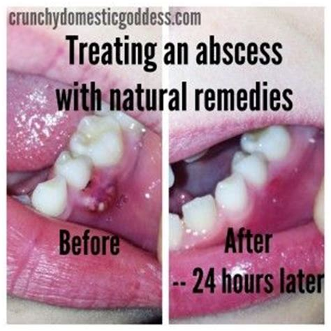tooth abscess before and after how i treated my