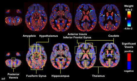 pattern analysis brain frontiers applications of multivariate pattern