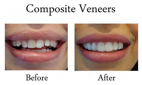 Veneer Komposit the 25 best composite veneers ideas on